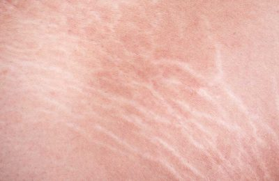 Is there a treatment to remove stretch marks?
